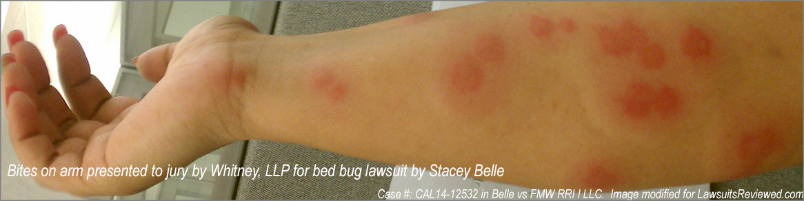 picture of bed bug bite used in lawsuit