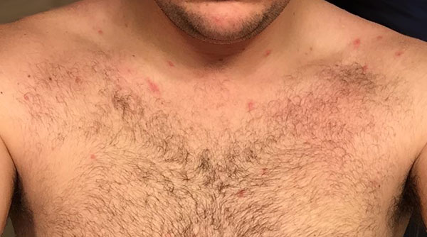 picture of what my bed bug bites look like after staying at a hotel